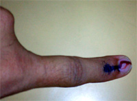Voting Mark in Finger - Tamilnadu State Elections May 2006